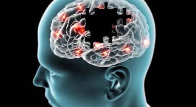 tratamientos-para-la-demencia-vascular