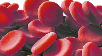 Conozca todo sobre la hemofilia: la enfermedad real