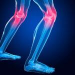 10-signos-de-dolor-de-rodilla