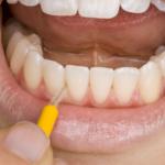 Por qué es importante limpiar y dar forma a los dientes en RCT
