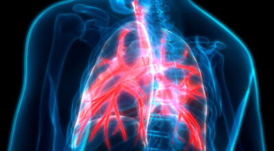 bronquitis-causa-sintomas-diagnostico-tratamientos-y-prevencion