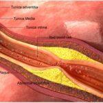 como-protege-el-colesterol-hdl-a-los-pacientes-con-enfermedades-cardiacas
