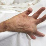 como-se-relaciona-la-anemia-por-artritis-reumatoide