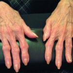 comprender-los-diferentes-tipos-de-enfermedades-de-los-huesos-y-las-articulaciones