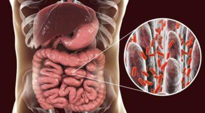 conexion-trastorno-del-metabolismo-de-los-lipidos-y-diabetes