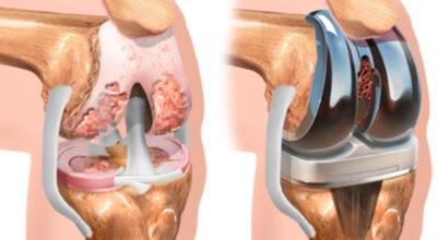 costo-de-las-complicaciones-del-procedimiento-de-cirugia-de-reemplazo-de-cadera