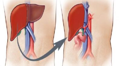 criterios-de-cirugia-de-trasplante-de-higado-costo-del-procedimiento