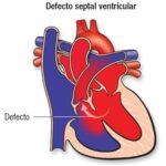 defecto-septal-ventricular