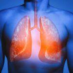 descubra-como-el-fumar-afecta-al-cuerpo