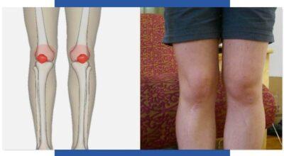 desgarro-del-ligamento-colateral-lateral