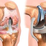 despues-del-cuidado-de-la-cirugia-de-reemplazo-de-rodilla-todo-lo-que-necesita-saber