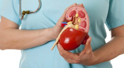 el-aneurisma-de-la-aorta-abdominal-causa-sintomas-tratamiento-y-prevencion
