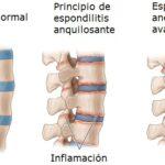 en-que-se-diferencia-la-necrosis-avascular-de-la-espondilitis-anquilosante