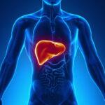 enfermedad-del-higado-graso-no-alcoholico-causa-sintomas-tratamiento-prevencion