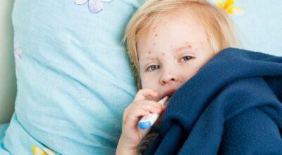 fiebre-chamki-causa-sintomas-prevencion
