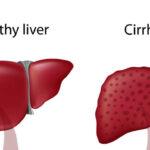 hepatitis-alcoholica-causa-sintomas-complicaciones-tratamiento-y-prevencion