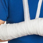 huesos-rotos-que-identifican-una-fractura