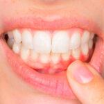 la-diabetes-tambien-puede-causar-problemas-dentales