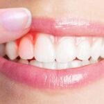 la-enfermedad-periodontal-puede-ser-contagiosa