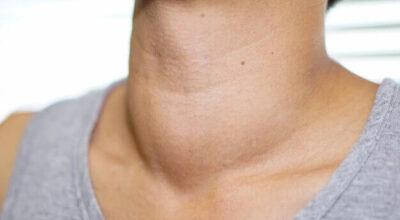 la-tiroides-en-los-ninos-necesita-saber