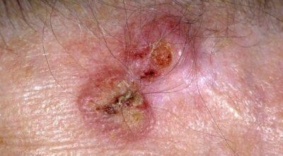 lesion-cutanea-causa-tratamiento-prevencion-factores-de-riesgo