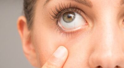 los-sintomas-de-espasmos-oculares-causan-remedios-caseros