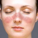lupus-causa-sintomas-diagnostico-tratamientos-prevencion
