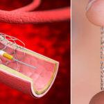 marcapasos-y-stent-conocen-la-diferencia