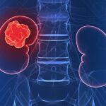 nefroblastoma-causa-sintomas-factores-de-riesgo-tratamientos-prevencion