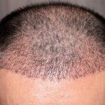 procedimiento-de-trasplante-de-cabello-que-esperar