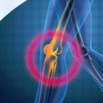 saber-todo-sobre-la-artroplastia-robotica-de-rodilla