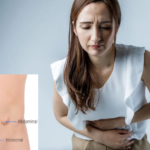 sintomas-de-hernia-causas-tratamiento-prevencion