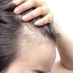 trasplante-de-cabello-es-seguro-para-ti