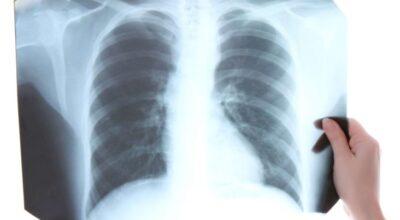 tuberculosis-tb-causa-sintomas-tratamiento-y-prevencion
