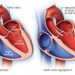 vinculo-entre-un-estilo-de-vida-defectuoso-y-enfermedades-cardiacas