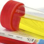7-formas-de-prevenir-la-enfermedad-renal-en-pacientes-diabeticos