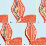 acalasia-causa-sintomas-factores-de-riesgo-complicaciones-y-tratamiento