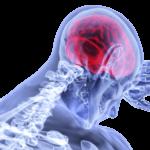 accidente-cerebrovascular-ataque-cerebral-causa-sintomas-prevencion