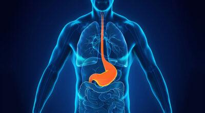 acidez-estomacal-causa-sintomas-tratamiento-y-prevencion