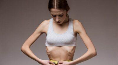 anorexia-causa-sintomas-factores-de-riesgo-remedios-cura