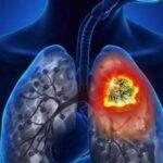 cancer-de-pulmon-causa-sintomas-prevencion
