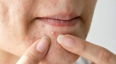 causas-tratamiento-y-remedios-caseros-de-la-hiperpigmentacion