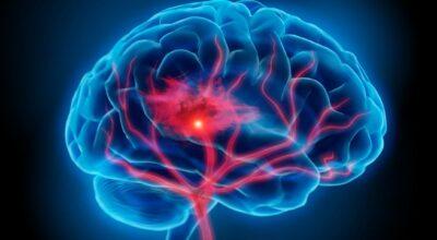 consejos-de-prevencion-evitar-accidentes-cerebrovasculares-debido-a-un-estilo-de-vida-poco-saludable