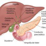 costo-de-recuperacion-del-procedimiento-de-cirugia-de-extirpacion-de-la-vesicula-biliar