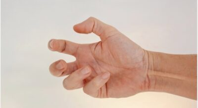 distonia-causa-sintomas-tratamiento-y-prevencion