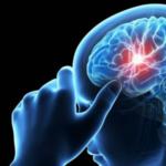 el-aneurisma-cerebral-causa-sintomas-y-tratamientos