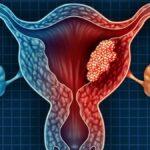 el-cancer-de-endometrio-causa-sintomas-tratamiento-y-prevencion