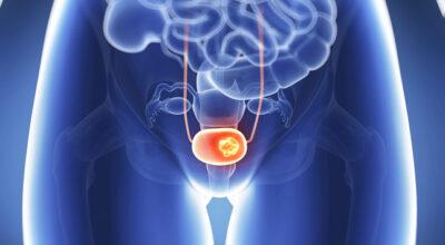 el-cancer-de-vagina-causa-sintomas-y-tratamiento