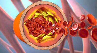 el-colesterol-alto-causa-sintomas-tratamientos-y-prevencion