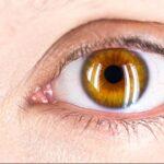 el-glaucoma-causa-sintomas-tratamientos-prevencion
